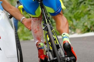 Sergio Paulinho requirió de suturas en la herida que le dejó la colisión.